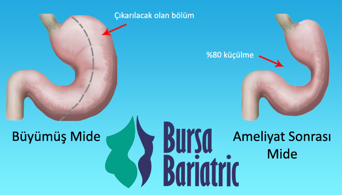 tup-mide-ameliyati-bariatric
