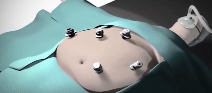 Tüp Mide (Sleeve Gastrektomi)