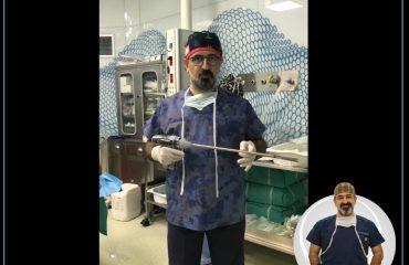Tüp Mide (Sleeve Gastrektomi) Ameliyatında Hangi Malzemeleri Kullanıyoruz ?